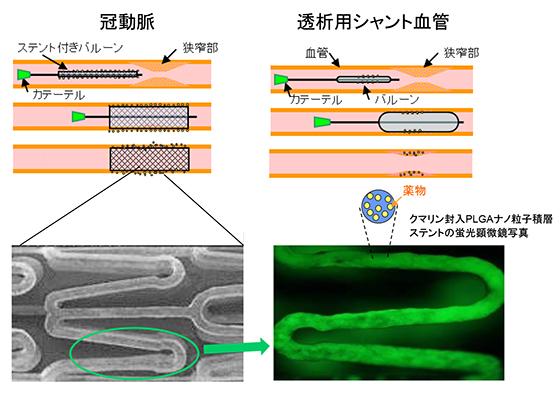 核酸の細胞内デリバリーが可能となるDDS 型医療デバイス ホソカワミクロン株式会社 マテリアル事業本部 Hosokawa Micron